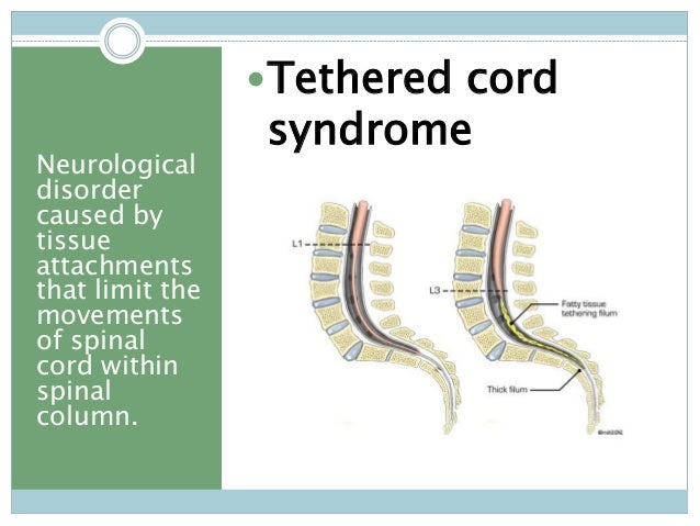 15 - Tethered Spinal Cord