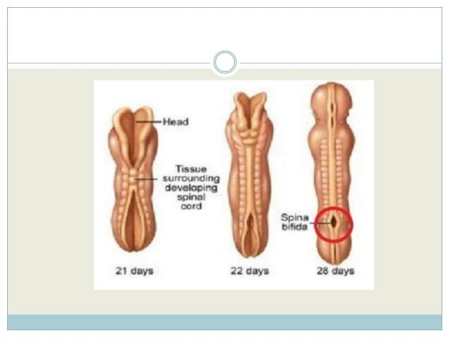 how to tell if you spinal cord