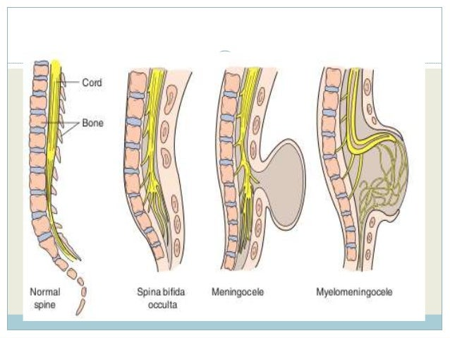 8 - Tethered Spinal Cord