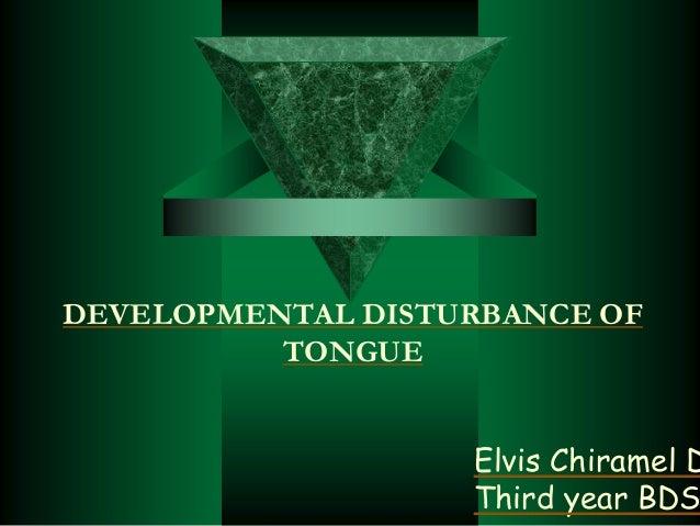 DEVELOPMENTAL DISTURBANCE OF TONGUE Elvis Chiramel D Third year BDS