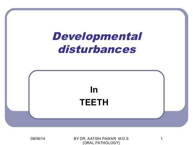 Developmental disturbances In TEETH 08/08/14 1BY DR. AATISH PAWAR M.D.S {ORAL PATHOLOGY}