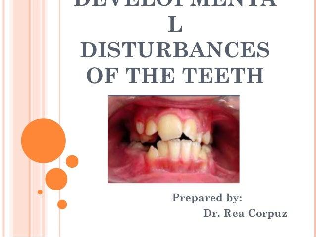 DEVELOPMENTA      LDISTURBANCES OF THE TEETH      Prepared by:           Dr. Rea Corpuz