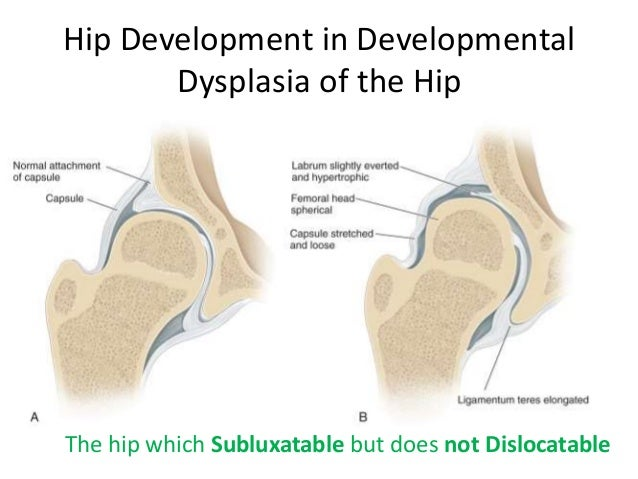 Developmental Dysplasia of the Hip (DDH) – Causes, Diagnosis, and Treatment
