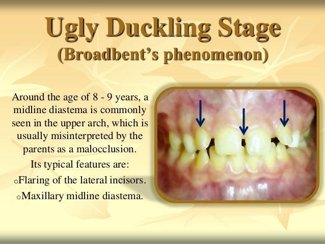 Define ugly duckling