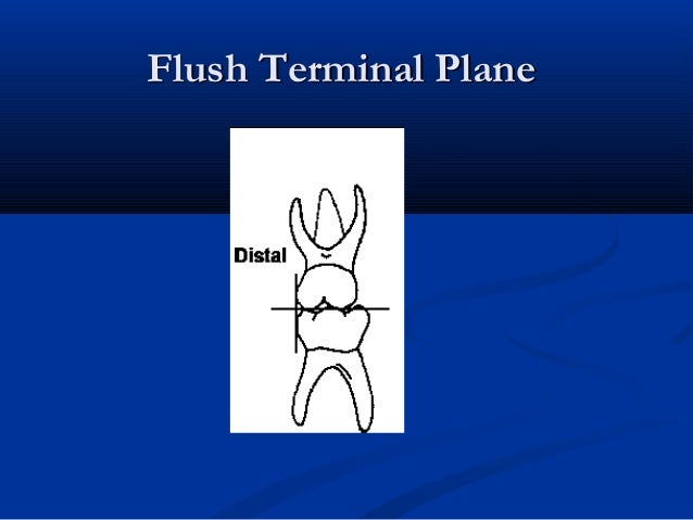 Flush Terminal PlaneFlush Terminal Plane