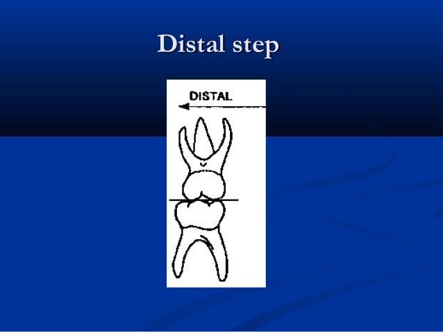 Distal stepDistal step
