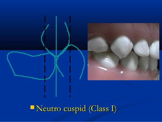  Neutro cuspid (Class I)Neutro cuspid (Class I)