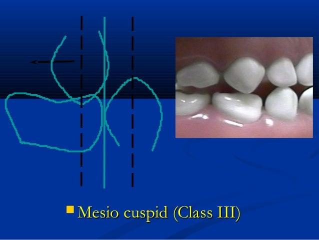  Mesio cuspid (Class III)Mesio cuspid (Class III)