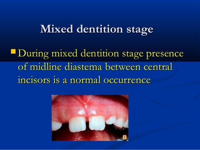 Mixed dentition stageMixed dentition stage  During mixed dentition stage presenceDuring mixed dentition stage presence of...