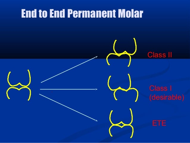 Class II Class I (desirable) ETE End to End Permanent Molar
