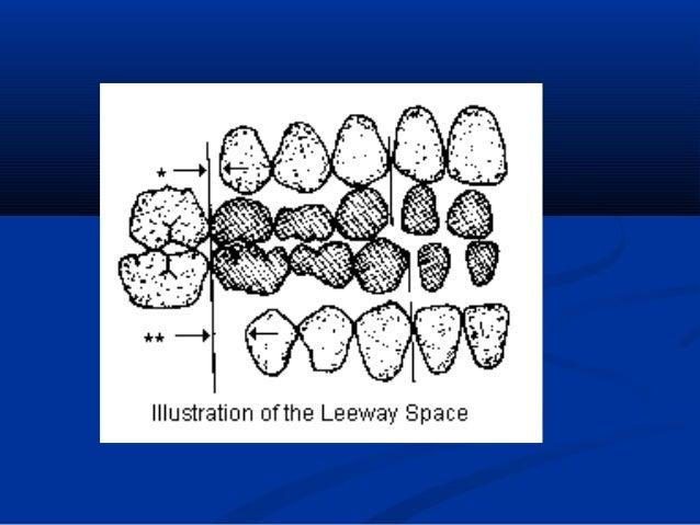 Late mesial shiftLate mesial shift  Refers to mandibular permanent molarRefers to mandibular permanent molar moving mesia...