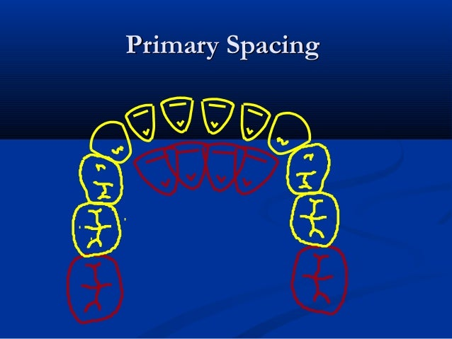 Primary SpacingPrimary Spacing