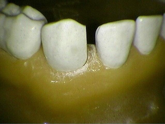 Predicting FuturePredicting Future Crowding –Crowding – Mixed dentition analysisMixed dentition analysis