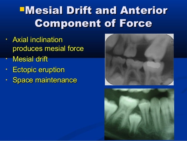 Terms: Mixed DentitionTerms: Mixed Dentition  Classic mixed dentitionClassic mixed dentition 12cde612cde6  Early mixed d...