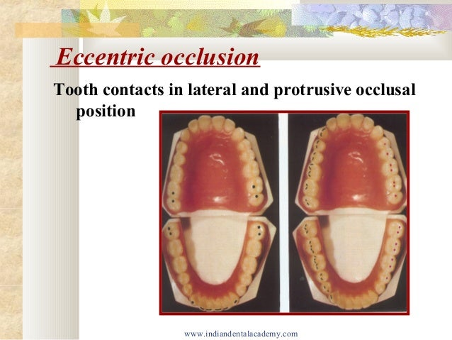 Development of occlusion/ dental crown & bridge courses