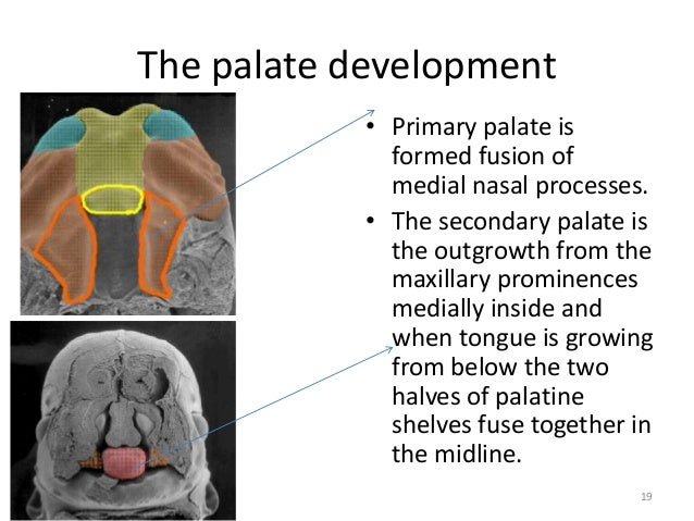 development of soft palate Abm protocol abm clinical protocol #17: guidelines for breastfeeding infants with cleft lip, cleft palate, or cleft lip and palate, revised 2013.