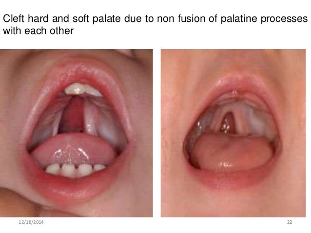 Development Of Pharyngeal Apparatus And Palate