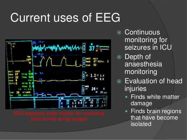 Continuous Eeg Monitoring Related Keywords & Suggestions
