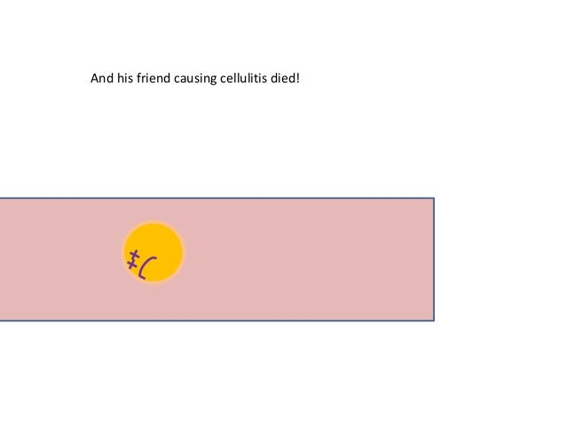 And his friend causing cellulitis died!