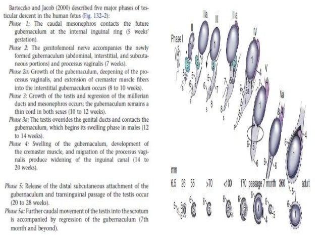 Development of testis & cryptorchidism presentation