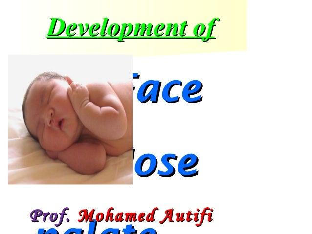Development of  Face Nose Prof. Mohamed Autifi