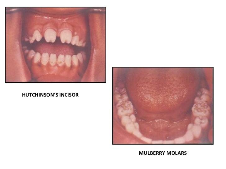 Abnormalites in Shape of Teeth
