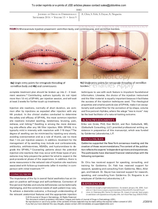 Chiu_2016_Lip Injection Techniques Using Small-Particle