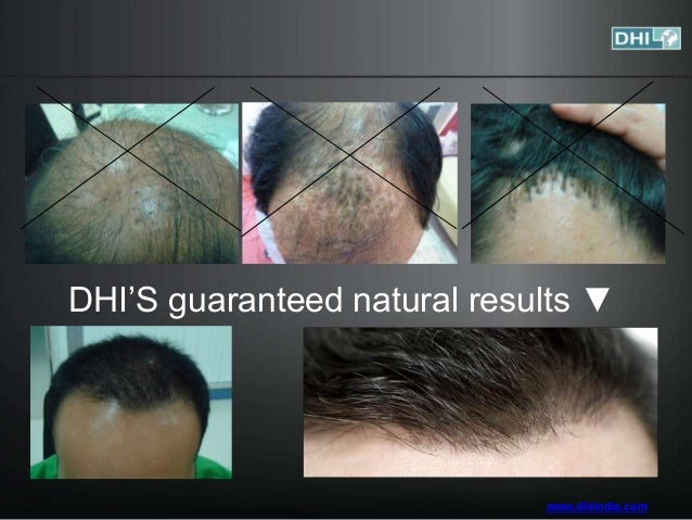 dhi india best hair restoration treatment. Black Bedroom Furniture Sets. Home Design Ideas