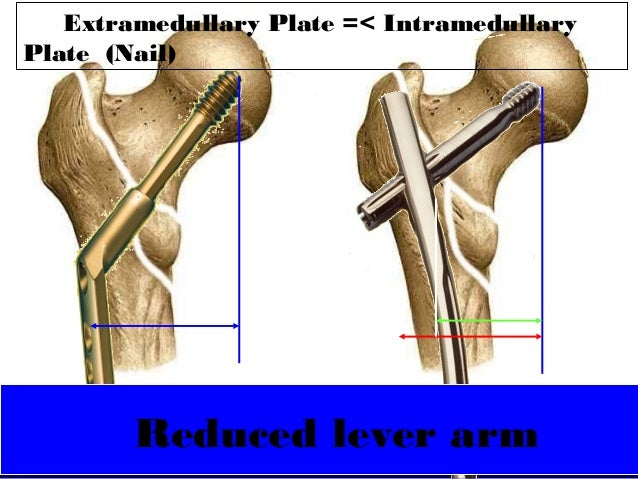 DHS vs PFNA for Intertrochanteric fractures - Dr Chintan N ...