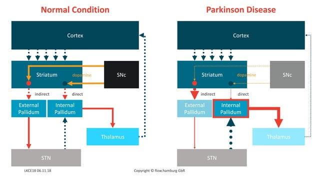 Cortex Striatum External Pallidum Internal Pallidum Thalamus STN SNc directindirect Copyright © flow.hamburg GbR Cortex St...