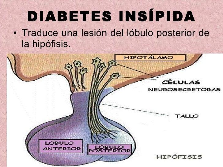 consecuencias de la diabetes insípida