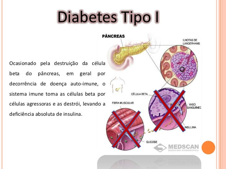 Glucagon And Diabetes Related Keywords - Glucagon And
