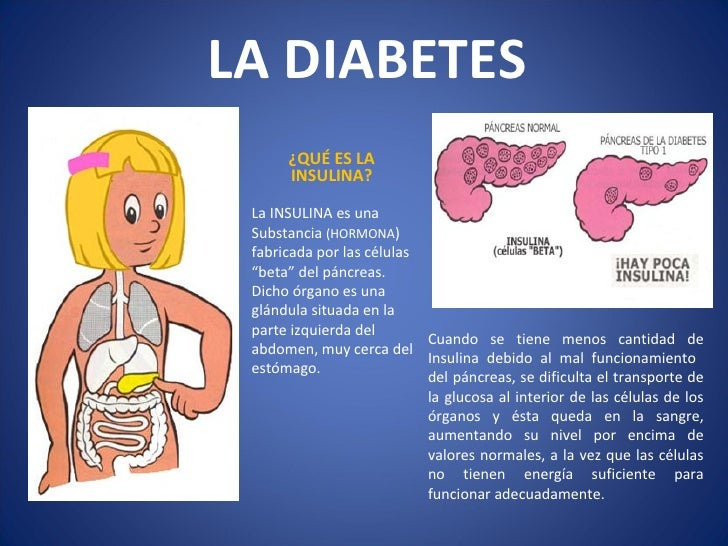Diabetes en la infancia