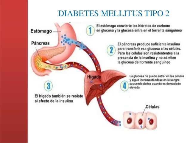 Proyecto Integrador de Saberes ~ Diabetes Mellitus tipo II
