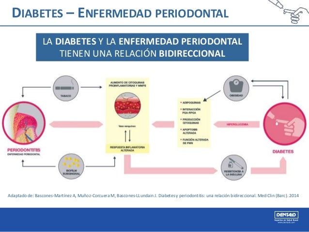 Diabetes y enfermedad periodontal