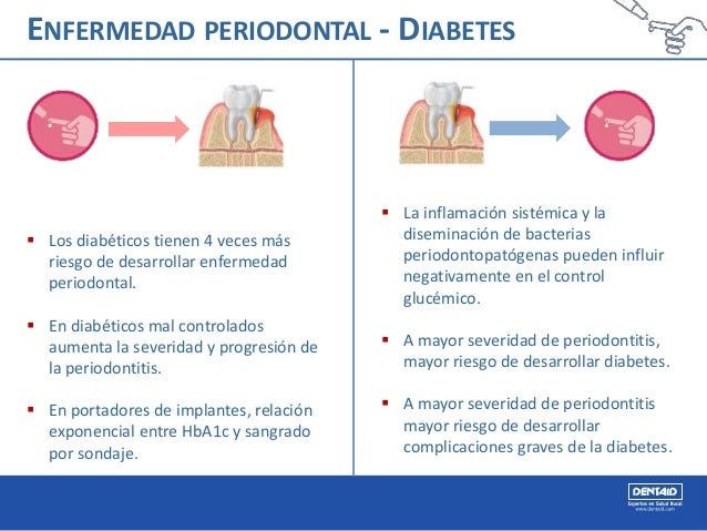 Diabetes y enfermedad periodontal