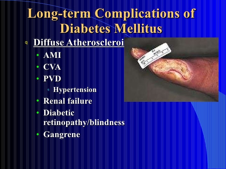 diabetic angiopathy