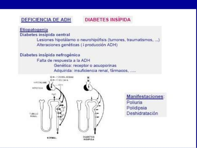 diabetes insípida fisiopatología central de l