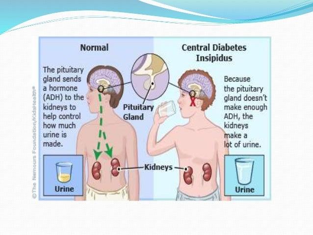 Diabetes Insipidus 47391743