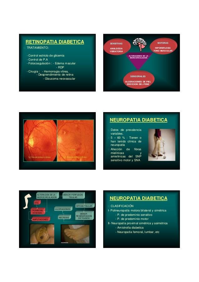 RETINOPATIA DIABETICA TRATAMIENTO: - Control estricto de glicemia - Control de P.A - Fotocoagulación : - Edema macular - R...