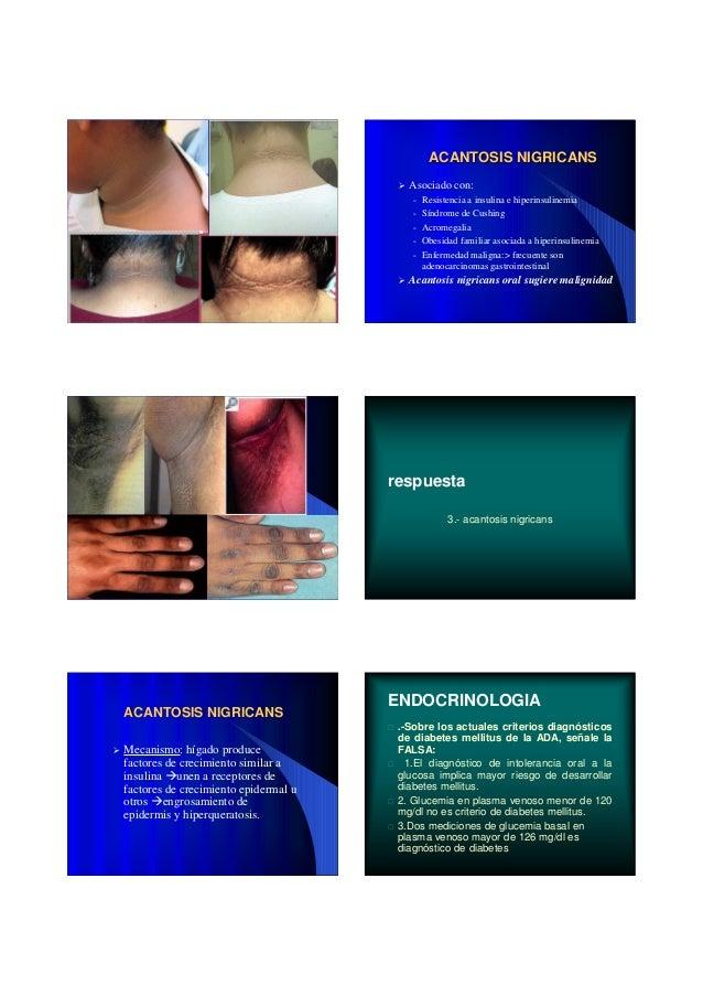 ACANTOSIS NIGRICANSACANTOSIS NIGRICANS Mecanismo: hígado produce factores de crecimiento similar a insulina unen a recepto...