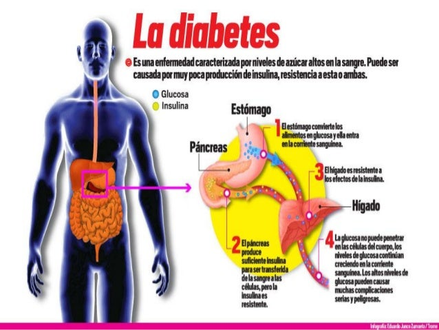 Diabetes no insulinodependiente