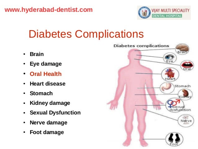 diabetes and dental disease Diabetes is a dangerous disease so dangerous it can lead to a host of dental  diseases for someone with diabetes, here are several dental conditions that you .