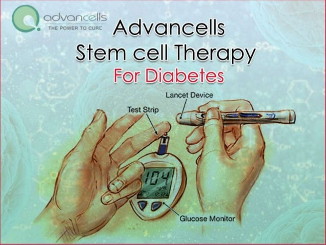 stem cell therapy for diabetes essay Stem cell therapy is a promising therapeutic modality for advanced  according  to the international diabetes federation, dm affects more than.