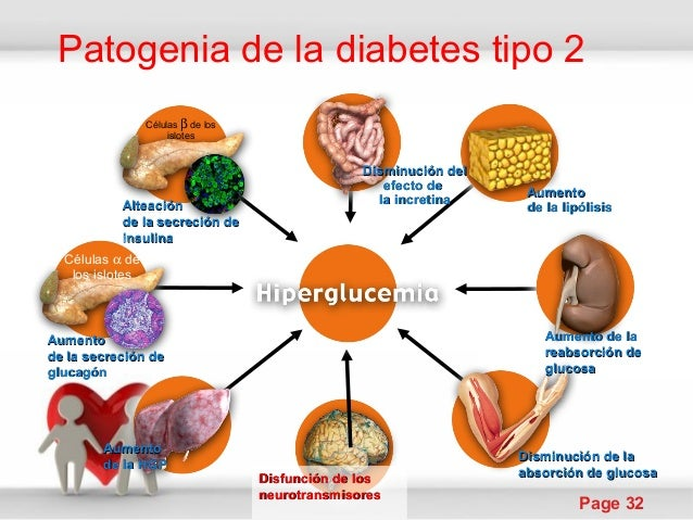 Diabetes tipo 2 de la fisio a la clinica