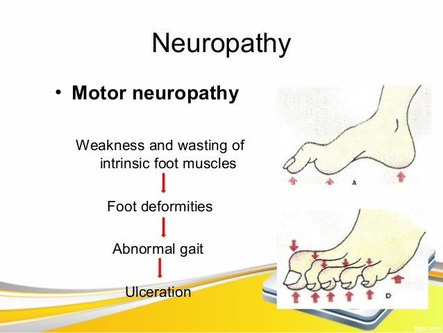 Diabetic foot for What is motor neuropathy