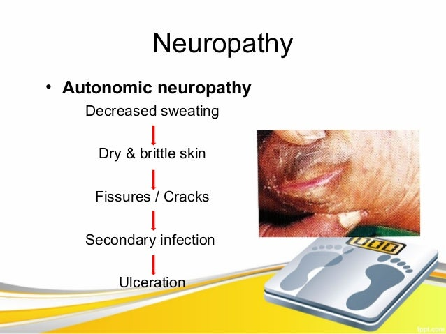 Neuropathy• Autonomic neuropathy    Decreased sweating     Dry & brittle skin     Fissures / Cracks    Secondary infection...