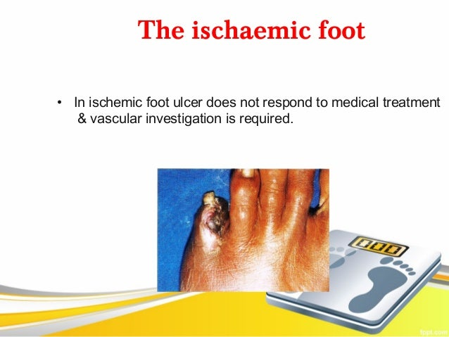 The ischaemic foot• In ischemic foot ulcer does not respond to medical treatment   & vascular investigation is required.
