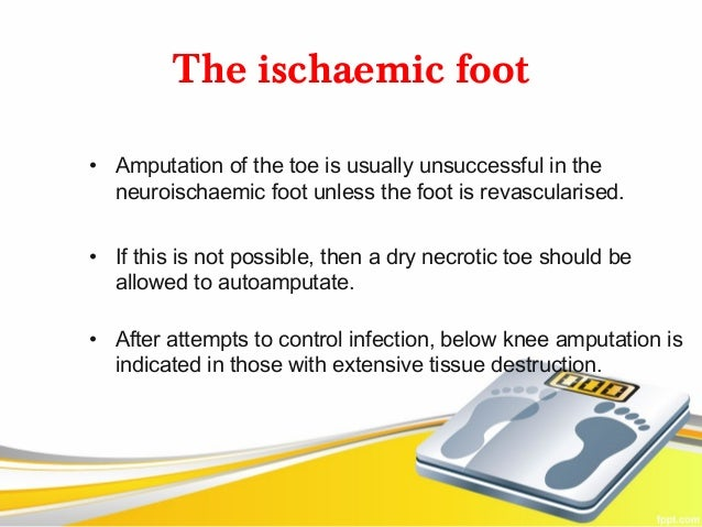 The ischaemic foot• Amputation of the toe is usually unsuccessful in the  neuroischaemic foot unless the foot is revascula...