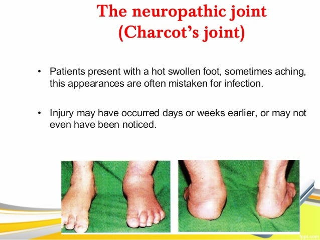 The neuropathic joint               (Charcot's joint)• Patients present with a hot swollen foot, sometimes aching,  this a...